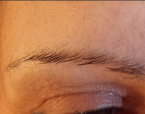 eyebrow 2 before